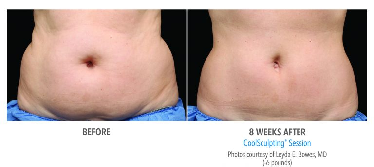 fat freezing in Solihull, before shot / after fat freezing in Solihull