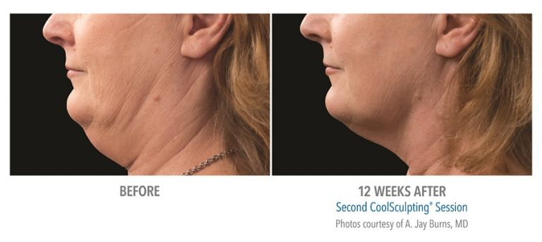 Chin before and after fat-freezing