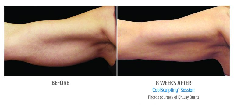 an arm after fat freezing