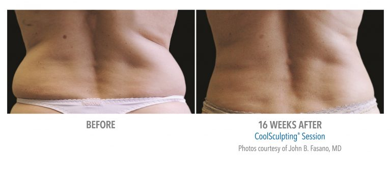 back / flank after fat freezing in solihull